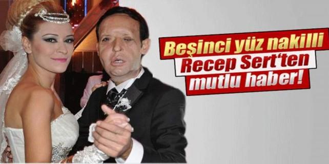 Yüz nakli olan Recep Sert'ten güzel haber