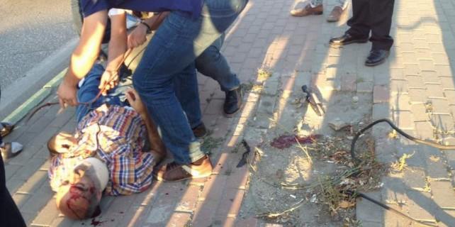 Bursa'da motosiklet çarptı ancak yaşlı adam vida yüzünden ölüyordu
