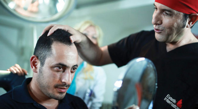 Saç ekimi öncesi 8 maddeye dikkat