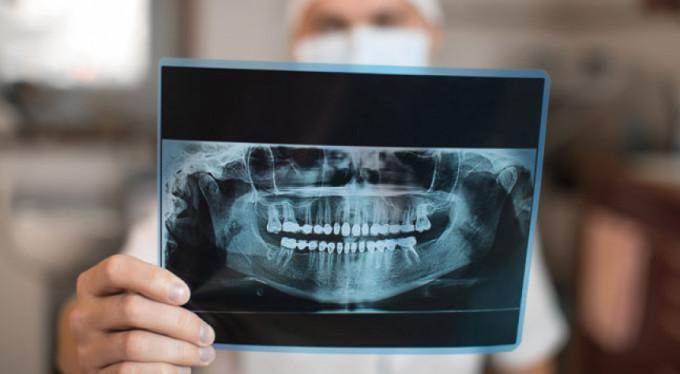 Diş röntgeninde radyasyon riskine karşı önlem şart
