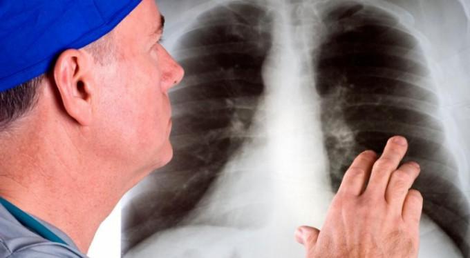 İşte akciğer kanserinin belirtileri