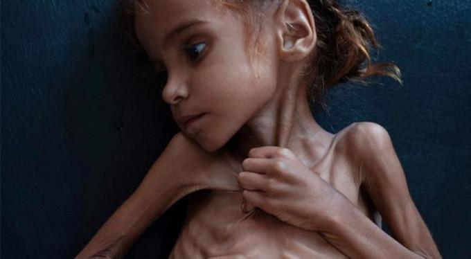 Yemen'de ülke nüfusunun yarısı yardıma muhtaç